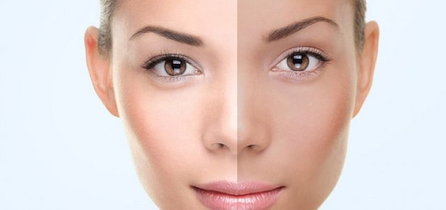 Wie man Haut in gerade einem Monat weiß wird